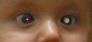 Foto di un bambino con retinoblastoma. Un occhio presenta il tipico riflesso bianco